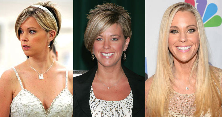 kate gosselin before and after plastic surgery 2017