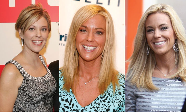 kate gosselin plastic surgery before and after 2018