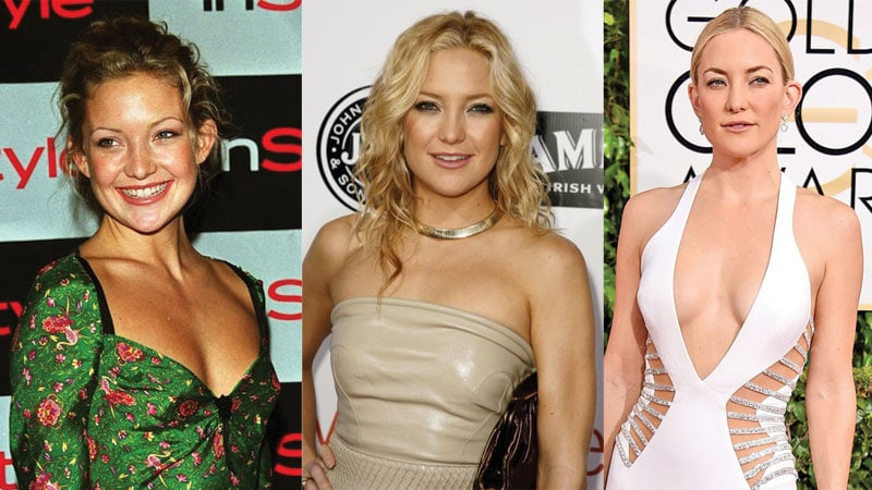 kate hudson before and after plastic surgery 2017
