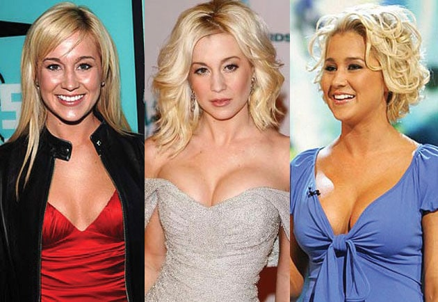 kellie pickler before and after plastic surgery 2017