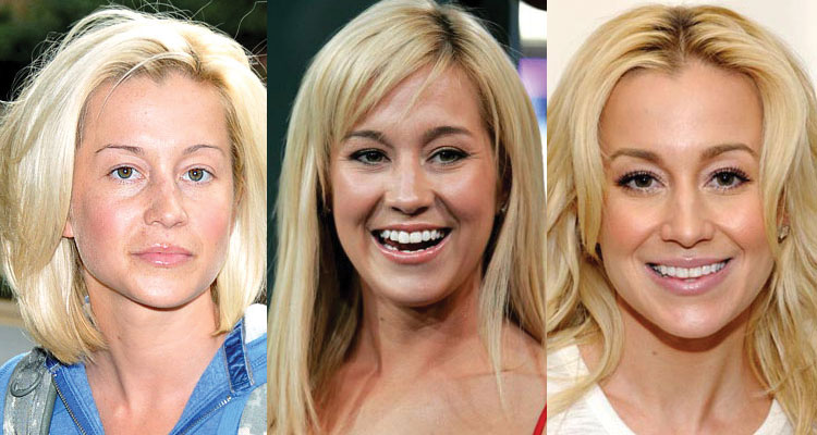 kellie pickler plastic surgery before and after 2019