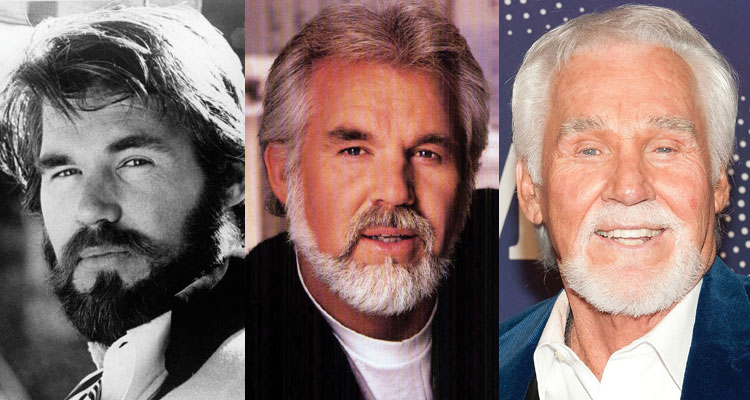 kenny rogers before and after plastic surgery 2017