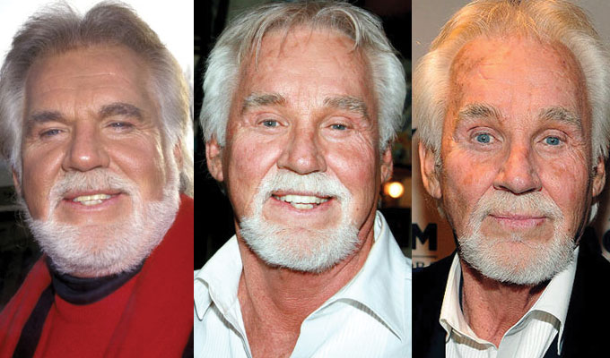 kenny rogers plastic surgery before and after 2017