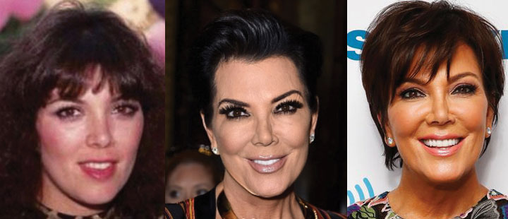 kris jenner before and after plastic surgery 2019