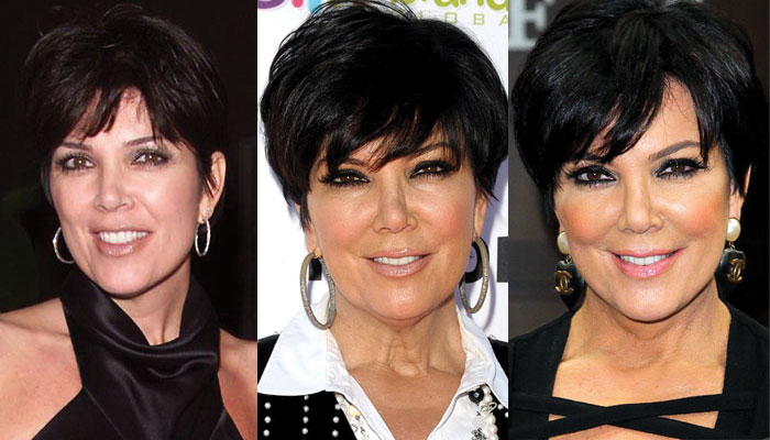 kris jenner plastic surgery before and after 2019