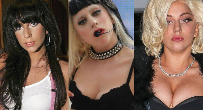 lady gaga before and after plastic surgery 2017