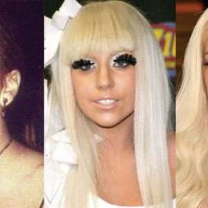Lady Gaga Plastic Surgery