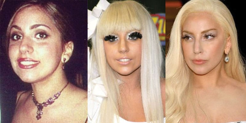 lady gaga plastic surgery before and after 2017