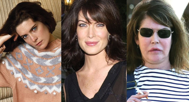 lara flynn boyle before and after plastic surgery 2017