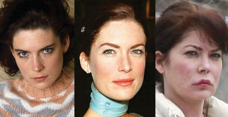 lara flynn boyle plastic surgery before and after 2017