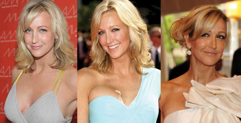lara spencer before and after plastic surgery 2021