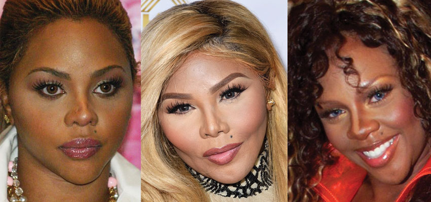 lil kim plastic surgery before and after 2019