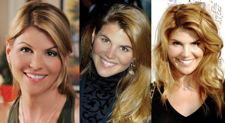 lori loughlin plastic surgery before and after 2018