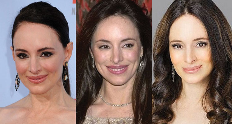 madeleine stowe plastic surgery before and after 2019