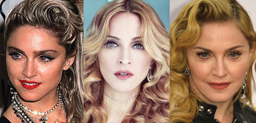 madonna plastic surgery before and after 2017