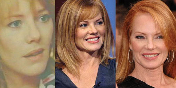 marg helgenberger plastic surgery before and after photos 2017