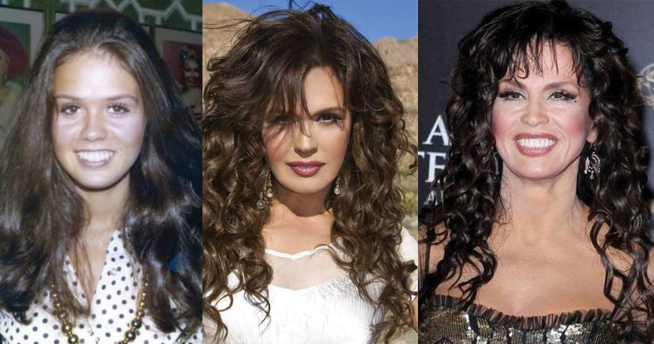 marie osmond before and after plastic surgery 2020