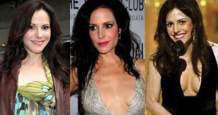 mary louise parker before and after plastic surgery 2019