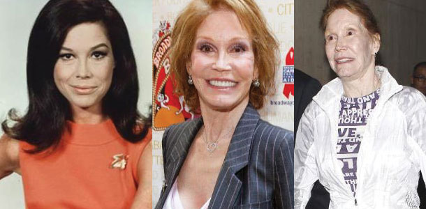 mary tyler moore before and after plastic surgery 2017