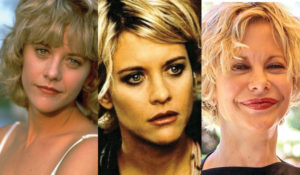 meg ryan plastic surgery before and after photos