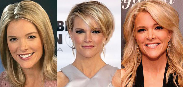 megyn kelly plastic surgery before and after 2017