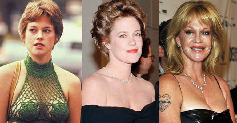 melanie griffith before and after plastic surgery 2018