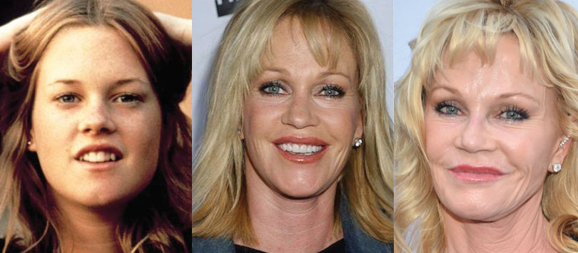 melanie griffith plastic surgery before and after 2018