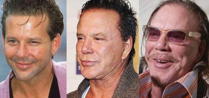 mickey rourke plastic surgery before and after 2018