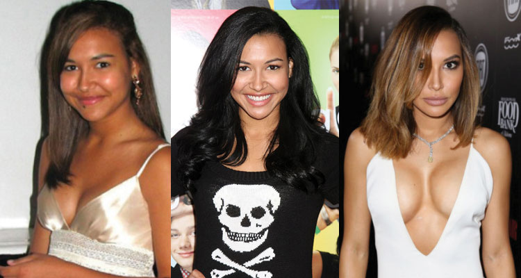 naya rivera before and after plastic surgery 2017