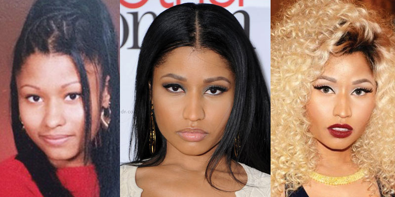 nicki minaj plastic surgery before and after 2017