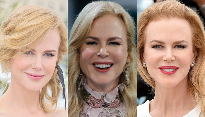nicole kidman plastic surgery before and after 2018