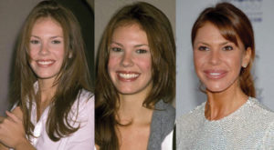 nikki cox plastic surgery before and after