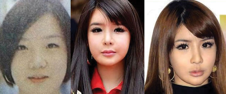 park bom plastic surgery before and after 2018
