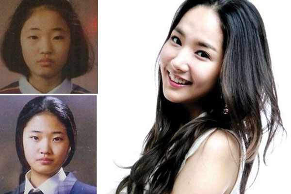 park min young plastic surgery before and after 2018