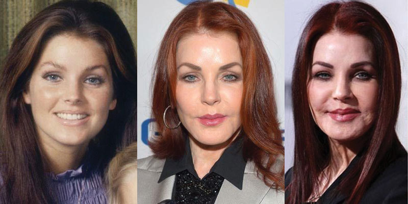 priscilla presley before and after plastic surgery 2020