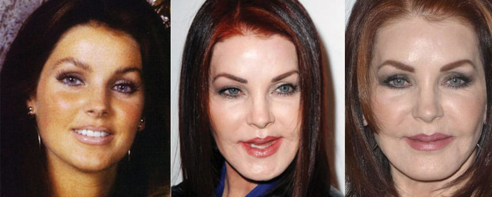 priscilla presley plastic surgery before and after 2017