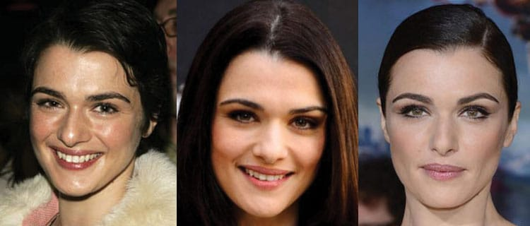 rachel weisz plastic surgery before and after 2019
