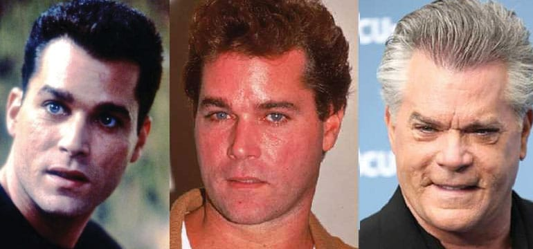 ray liotta plastic surgery before and after 2017