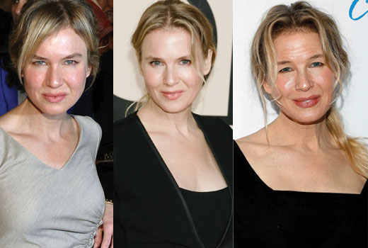 renee zellweger before and after plastic surgery 2017