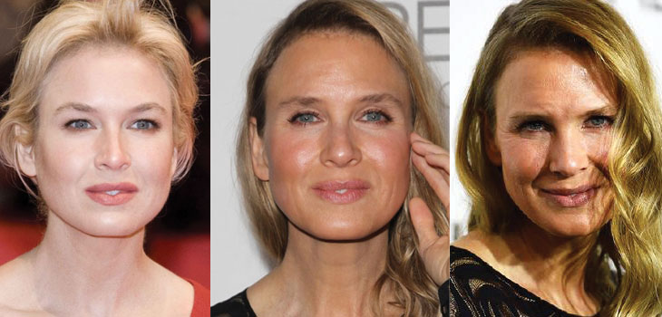 renee zellweger plastic surgery before and after 2017