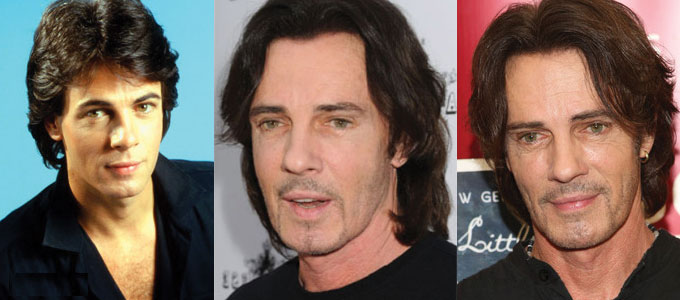 rick springfield plastic surgery before and after 2017