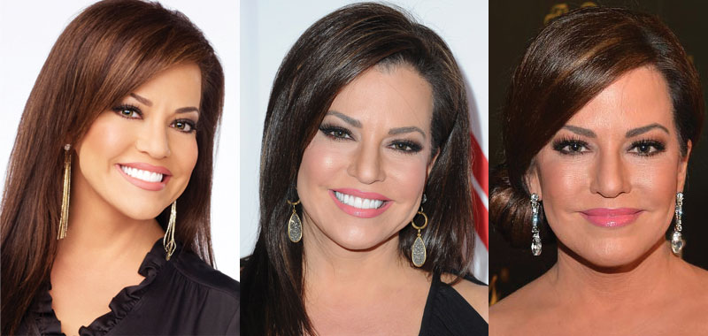 robin meade plastic surgery before and after 2017