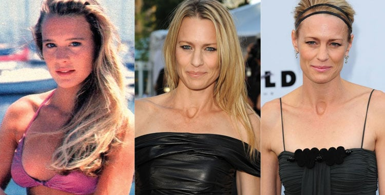 robin wright penn before and after plastic surgery 2017