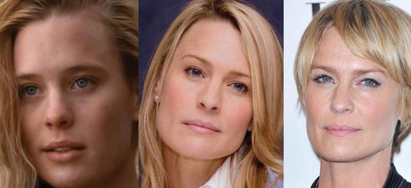 robin wright penn plastic surgery before and after 2017