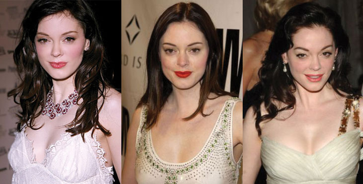 rose mcgowan before and after plastic surgery 2017