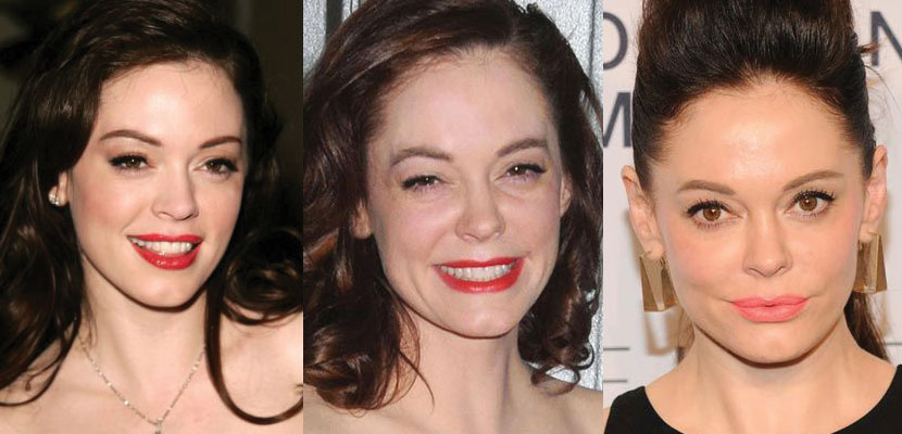 rose mcgowan plastic surgery before and after 2017
