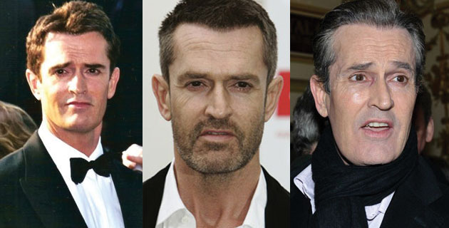 rupert everett plastic surgery before and after 2017