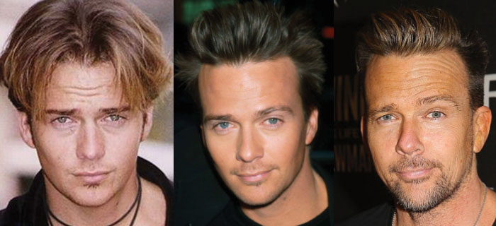 sean patrick flanery plastic surgery before and after 2017