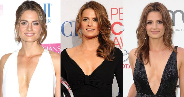 stana katic before and after plastic surgery 2019