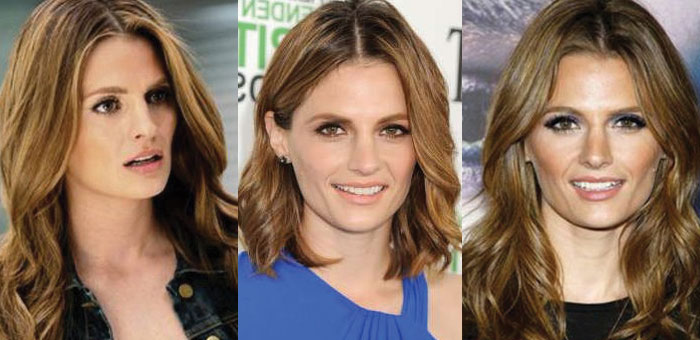 stana katic plastic surgery before and after 2019